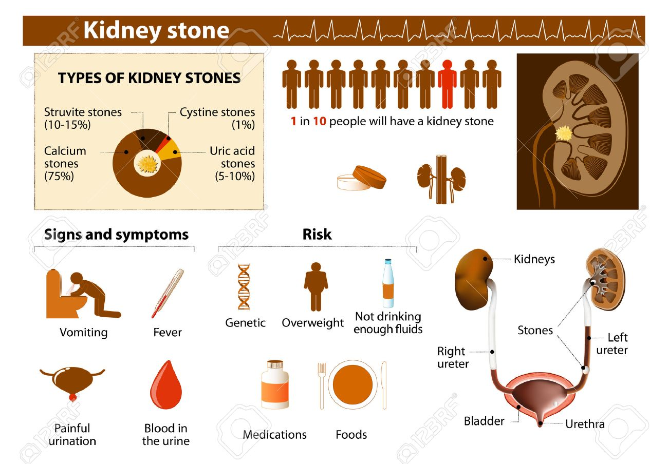 Kidney Stone Medical Infographic Set Elements And Symbols For