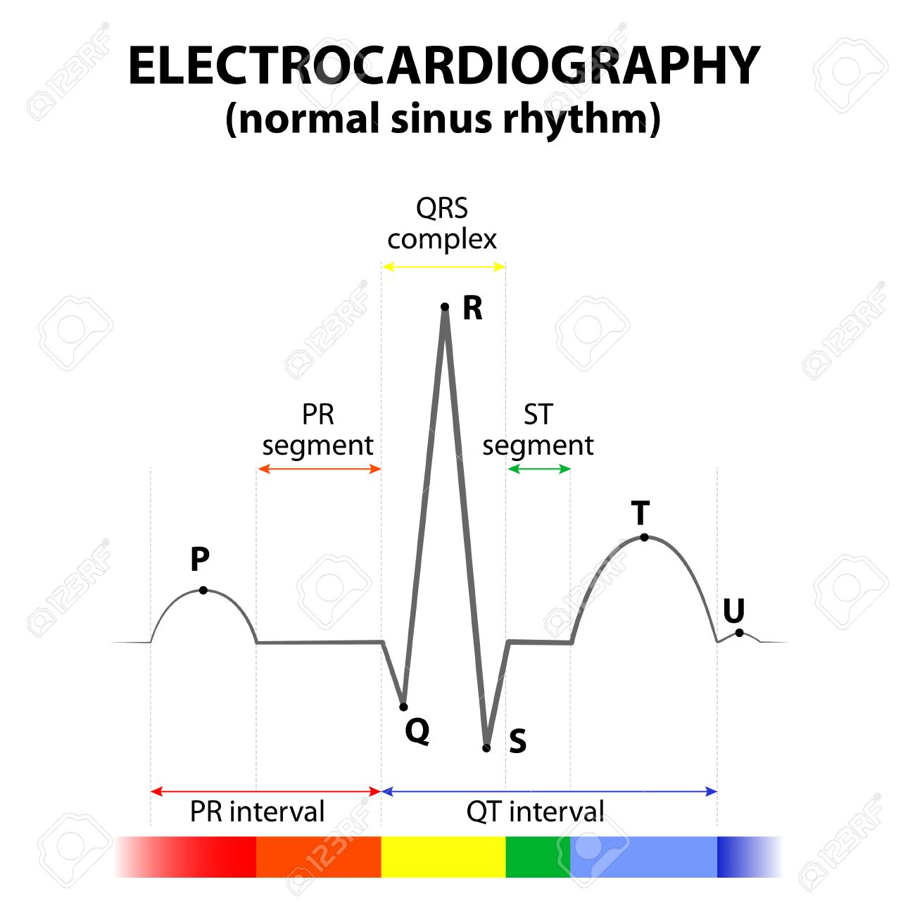 Sinus Heart Ekg Wiring Diagram Photo Stock Vector Ecg Of A In Normal Schematic Representation Wave And Segment Names