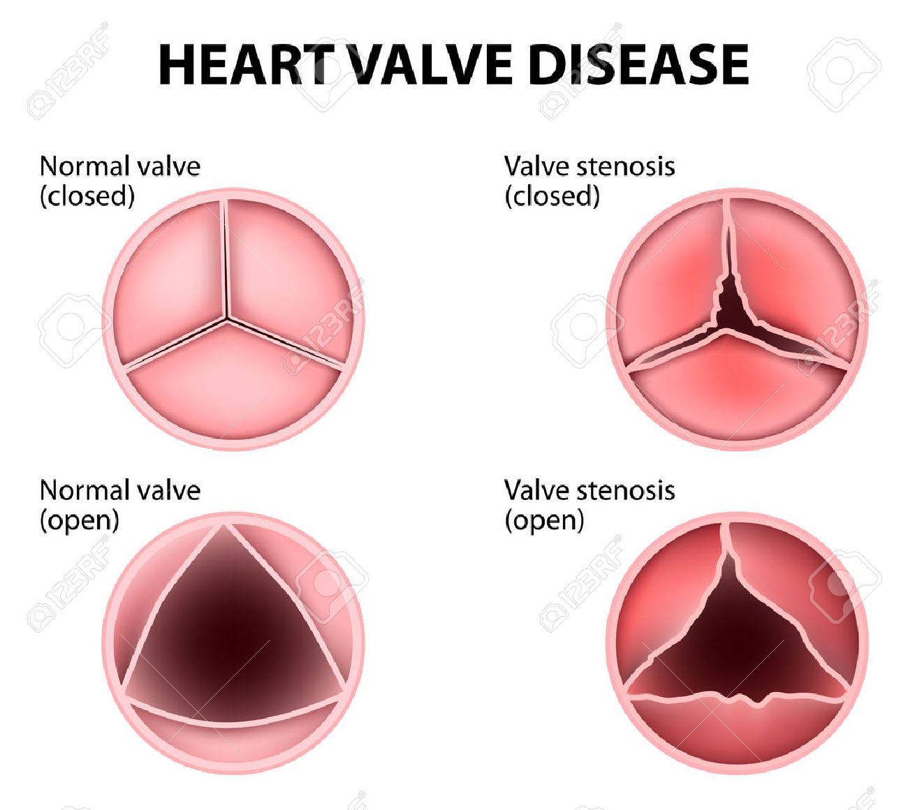 Valvular heart disease - 50194221