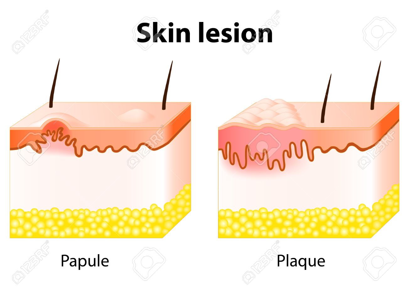 papule and plaque. skin lesion. papule is a solid elevation of, Skeleton