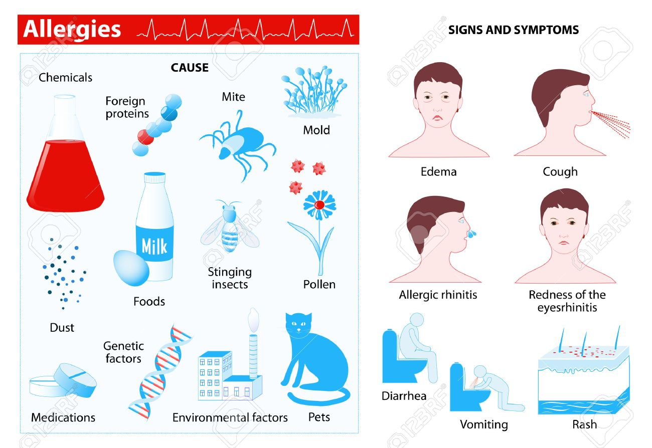 Allergy. Allergies also known as allergic diseases. Medical infographic. Set elements and symbols for your design - 53876339