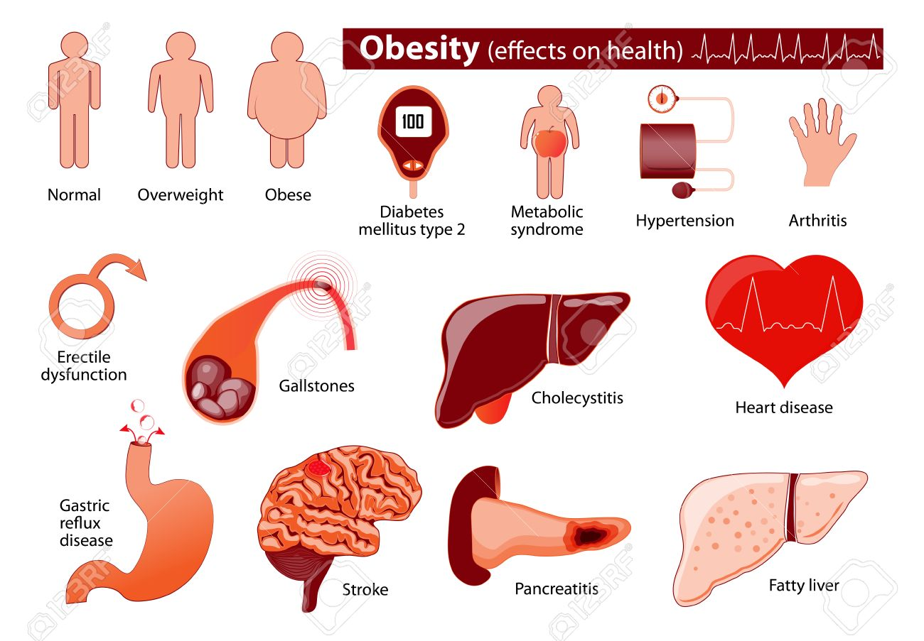 Obesity And Overweight Infographic Effects On Health Medical