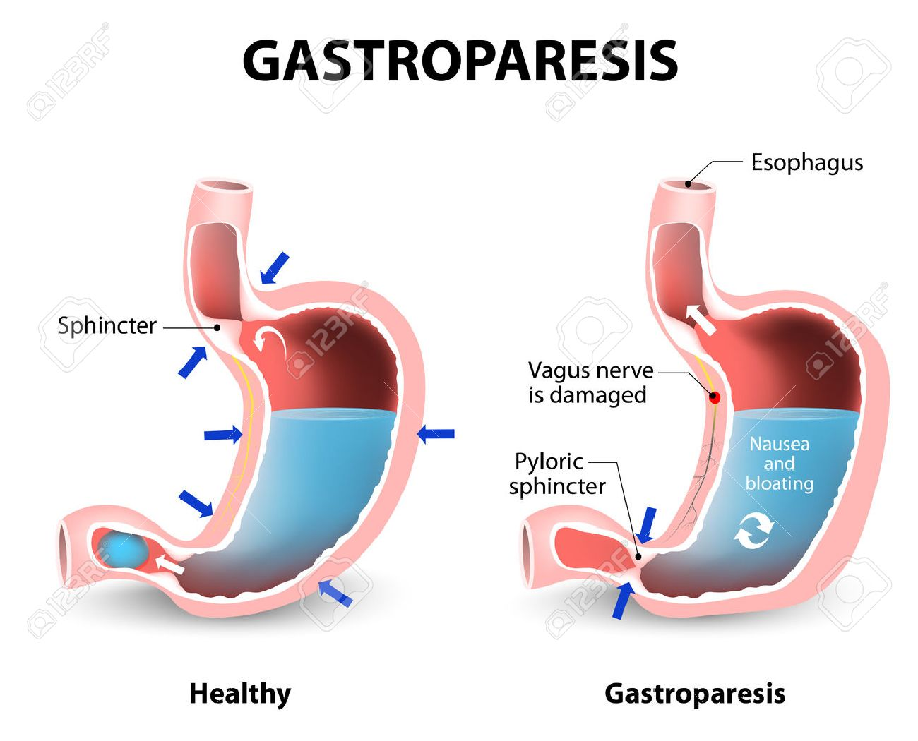 les paraziti de l estomac)