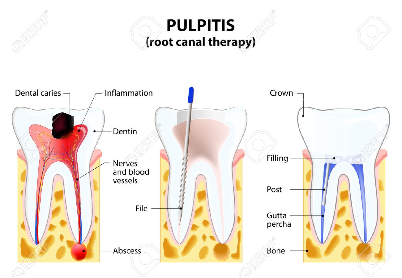 Pulpitis Root Canal Therapy Infected Pulp Is Removed From The