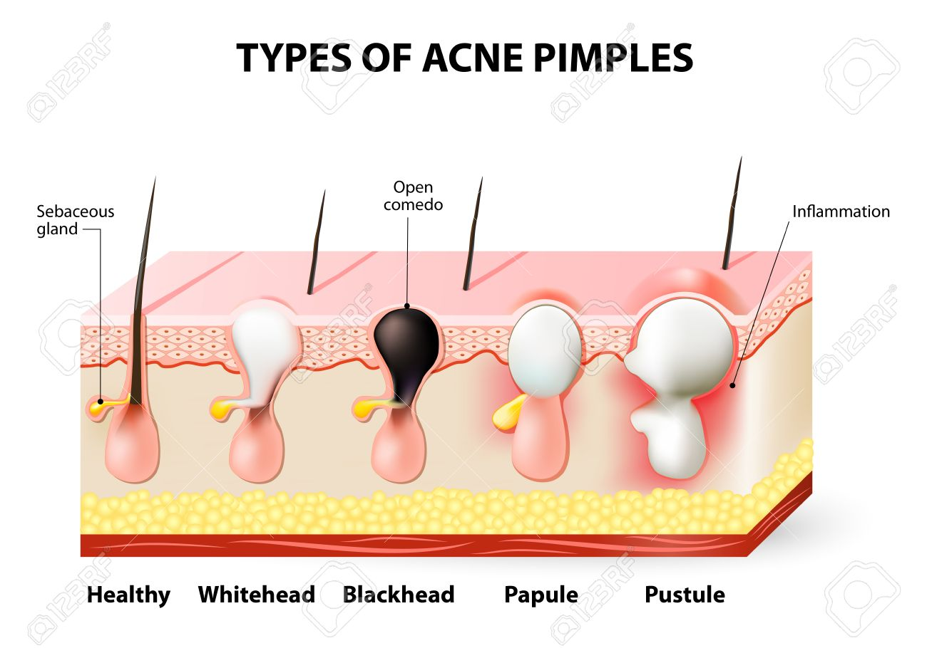Types of acne pimples healthy skin whiteheads and blackheads types of acne pimples healthy skin whiteheads and blackheads papules and pustules stock pooptronica