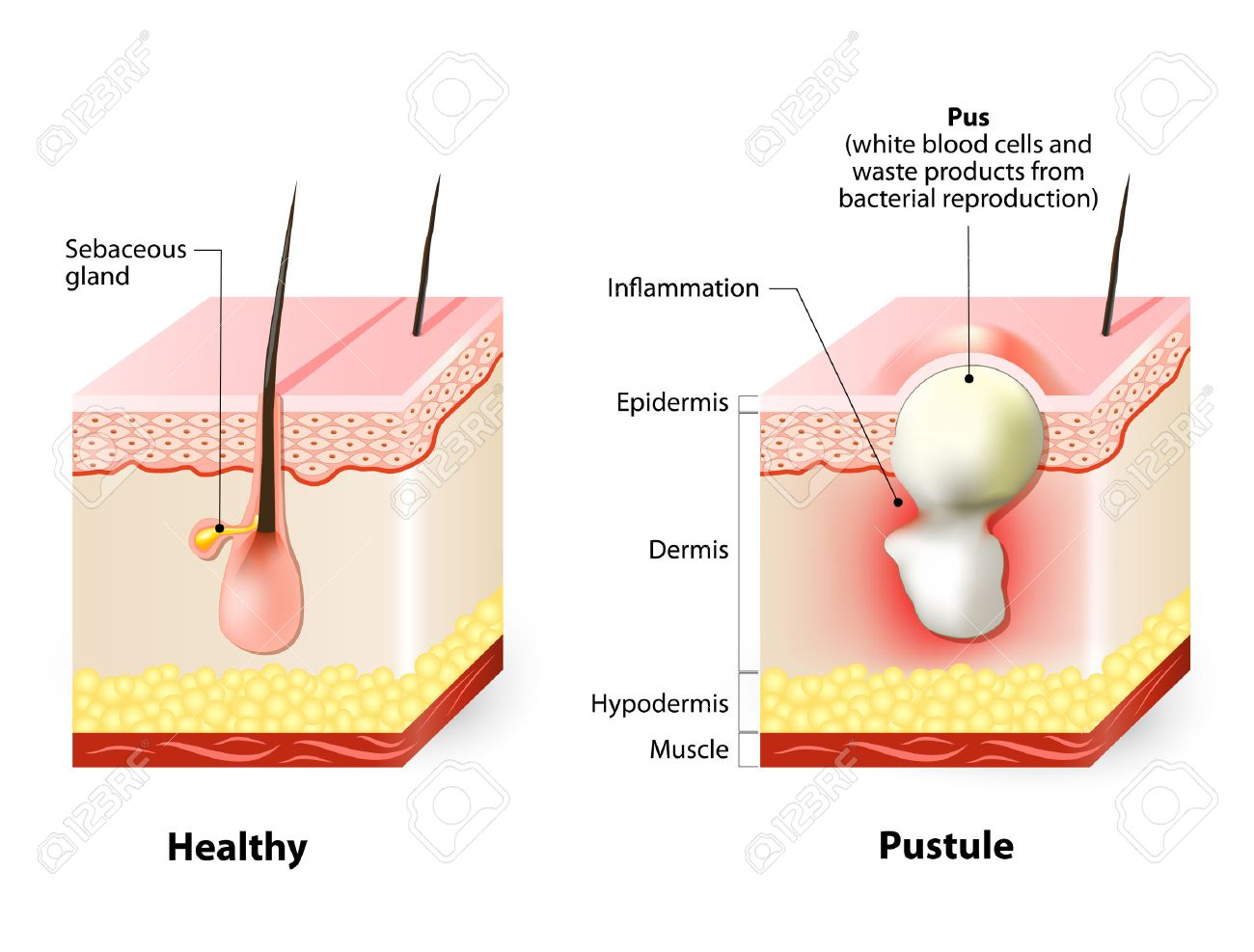 Types of acne pimples. Healthy skin and Pustules - 55495719
