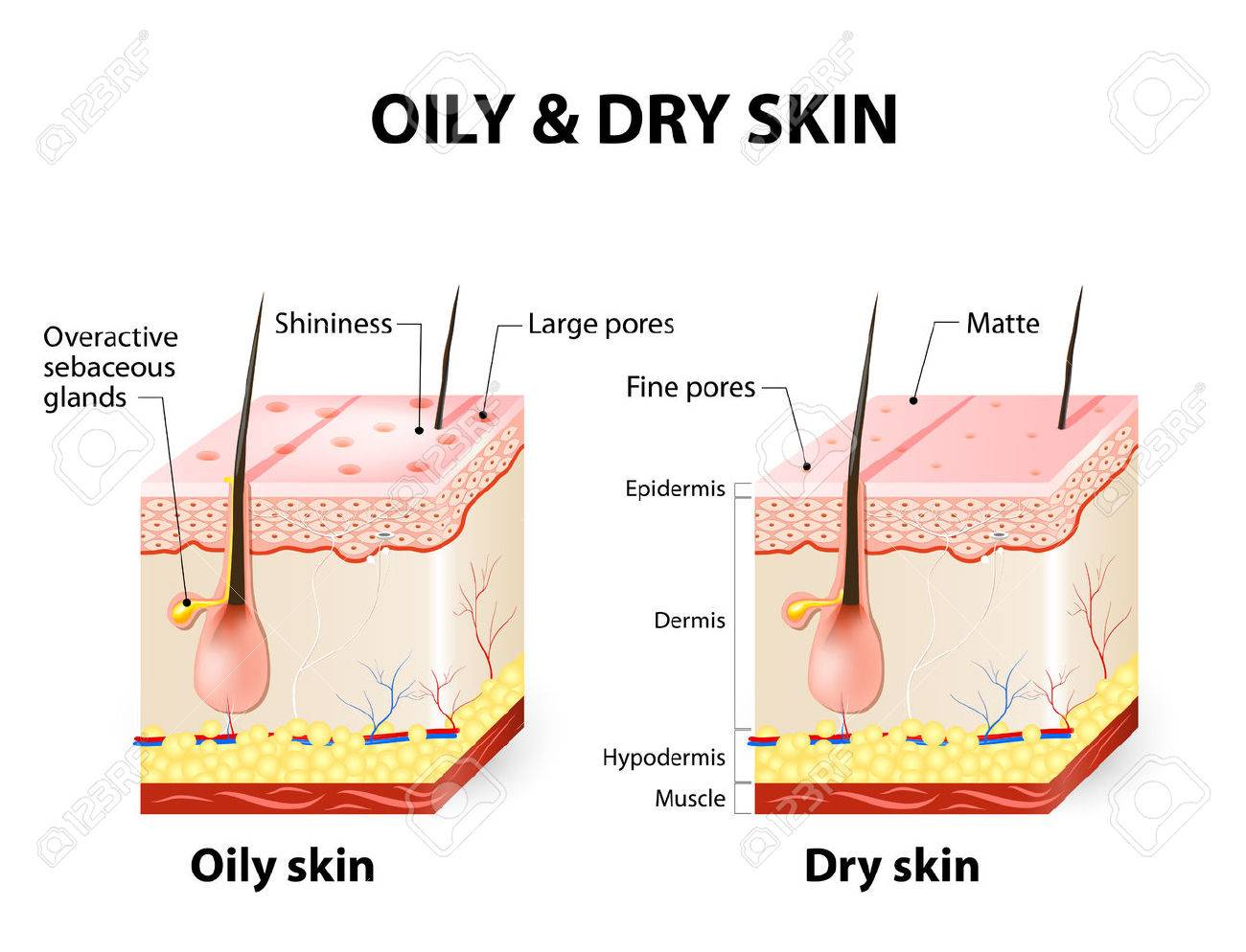 Oily & dry skin  Different  Human Skin types and conditions