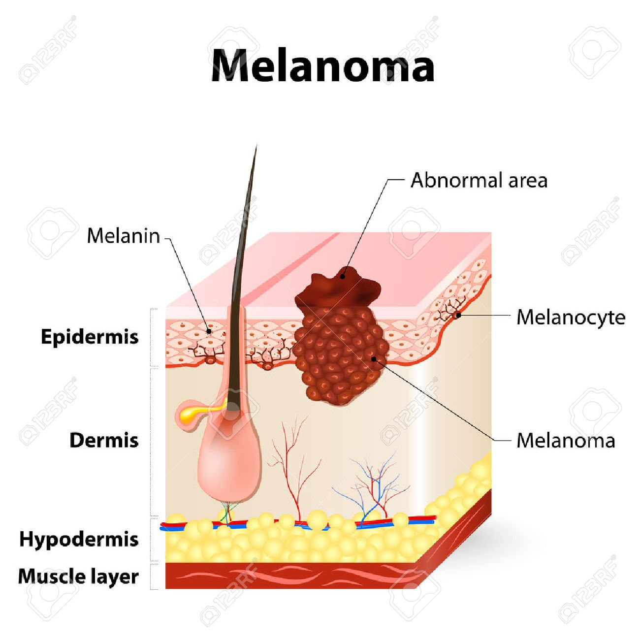 Diagram of melanoma auto electrical wiring diagram melanoma or skin cancer this rare type of skin cancer originates rh 123rf com basal cell ccuart Gallery
