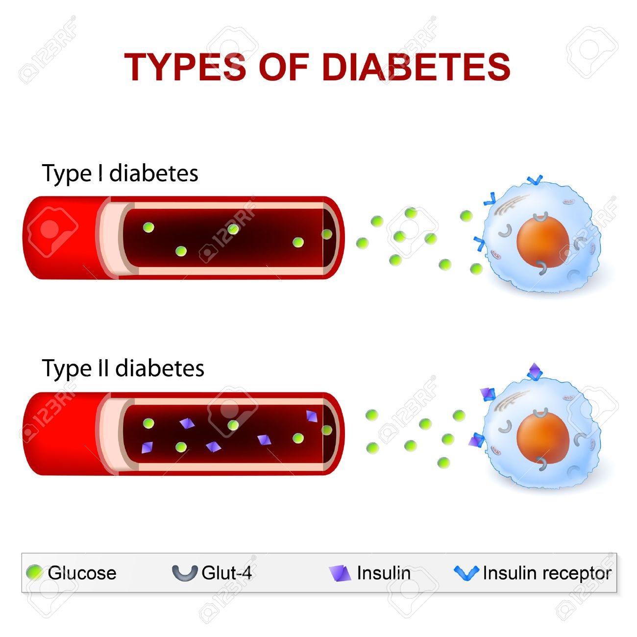 gevolgen diabetes mellitus type 2
