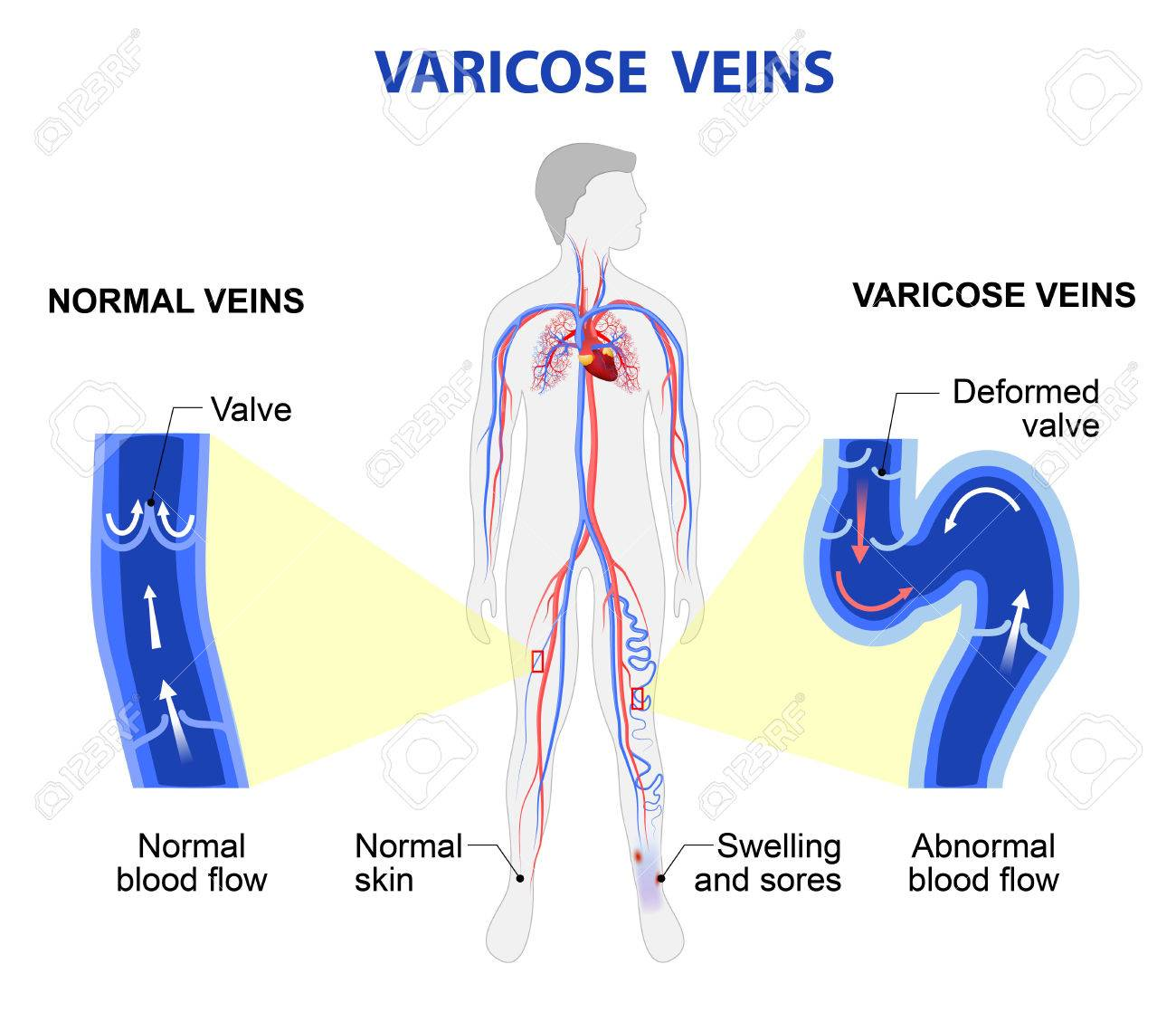 Varicose Vein Forms In A Leg Normal Vein And Varicose Vein Royalty