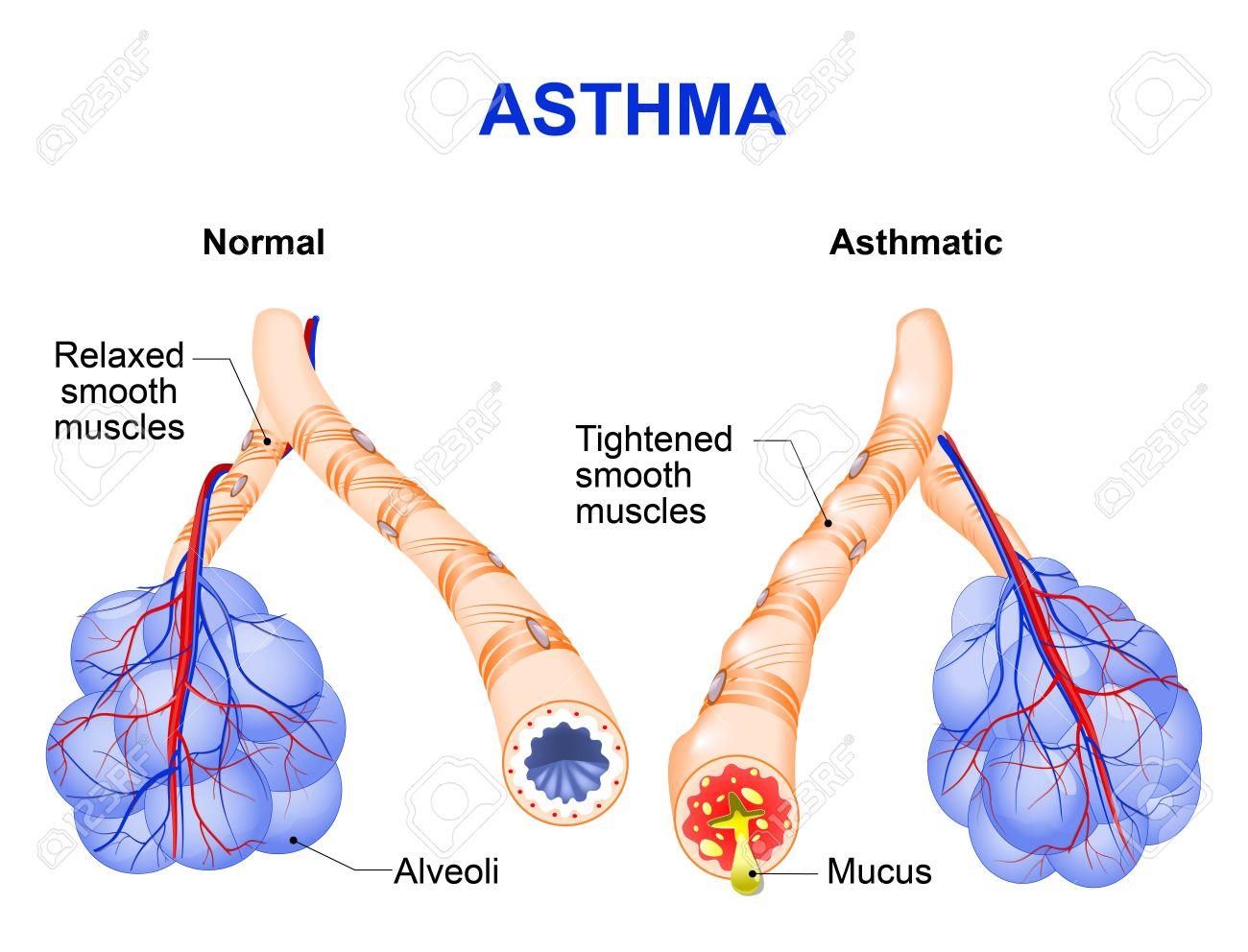 Asthma Ist Eine Chronische Entzündliche Erkrankung Der Atemwege, Die ...