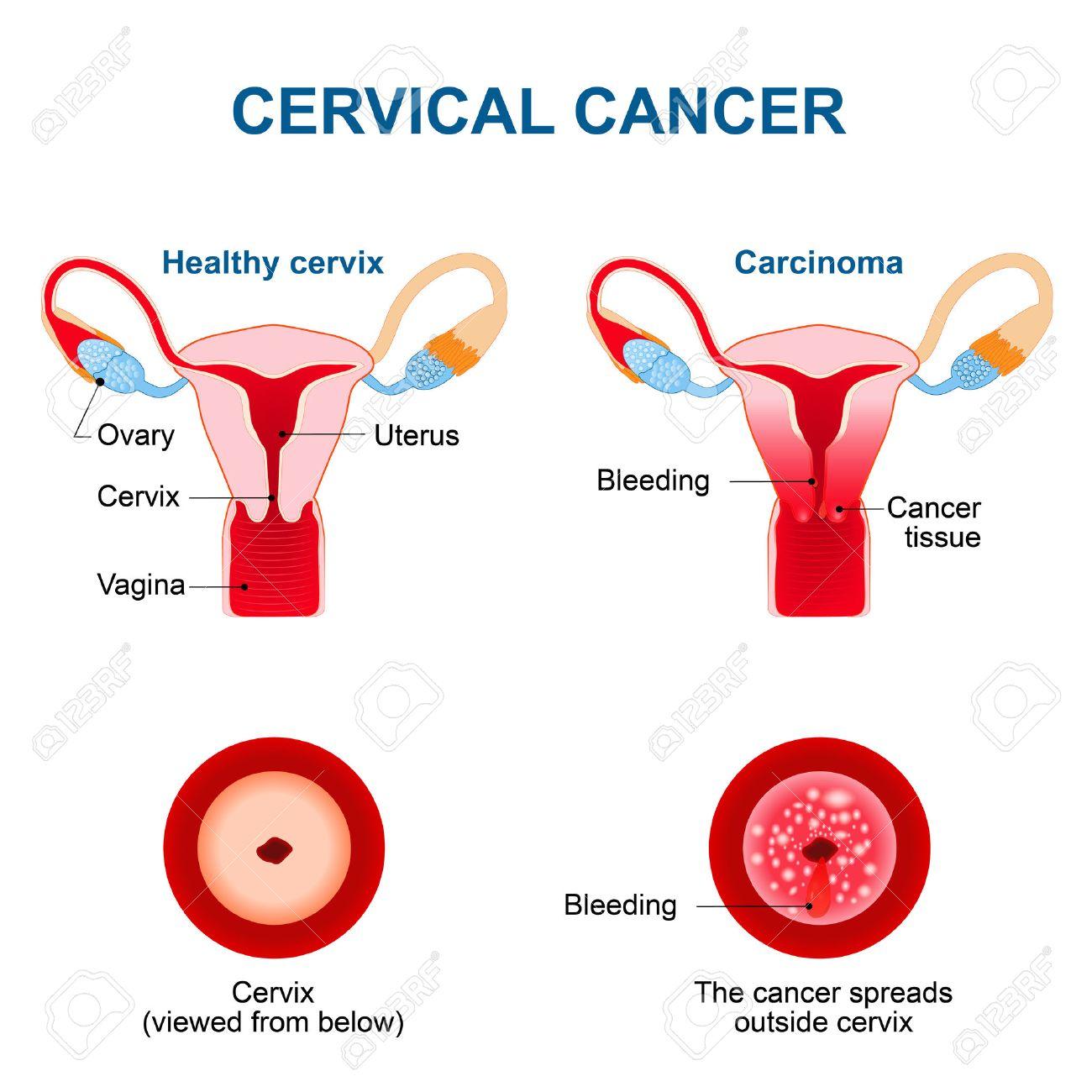 Cancer Du Col Utérin. Carcinome Du Col De L'utérus. Tumeur Maligne ...
