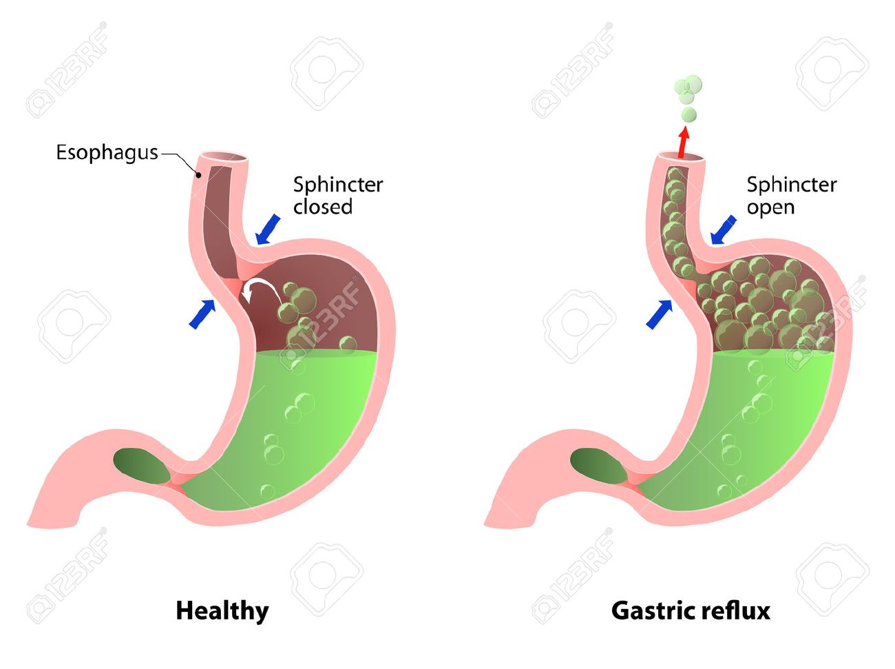 Stomach Disease: Belching, Heartburn Or Reflux. The Illustration ...
