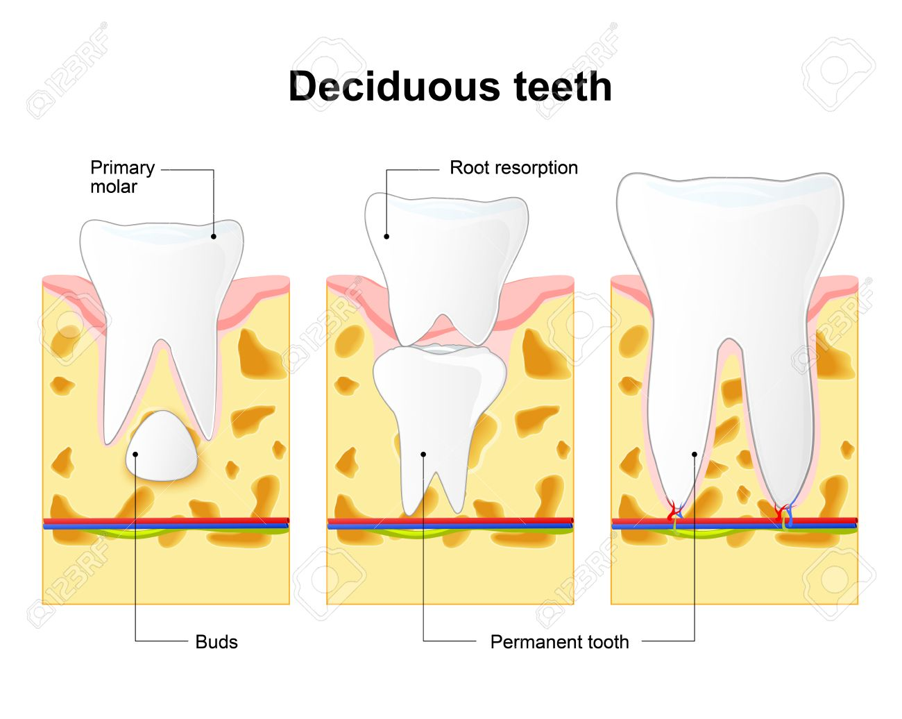 Primary Tooth And Permanent Tooth. Illustration Shows Permanent ...