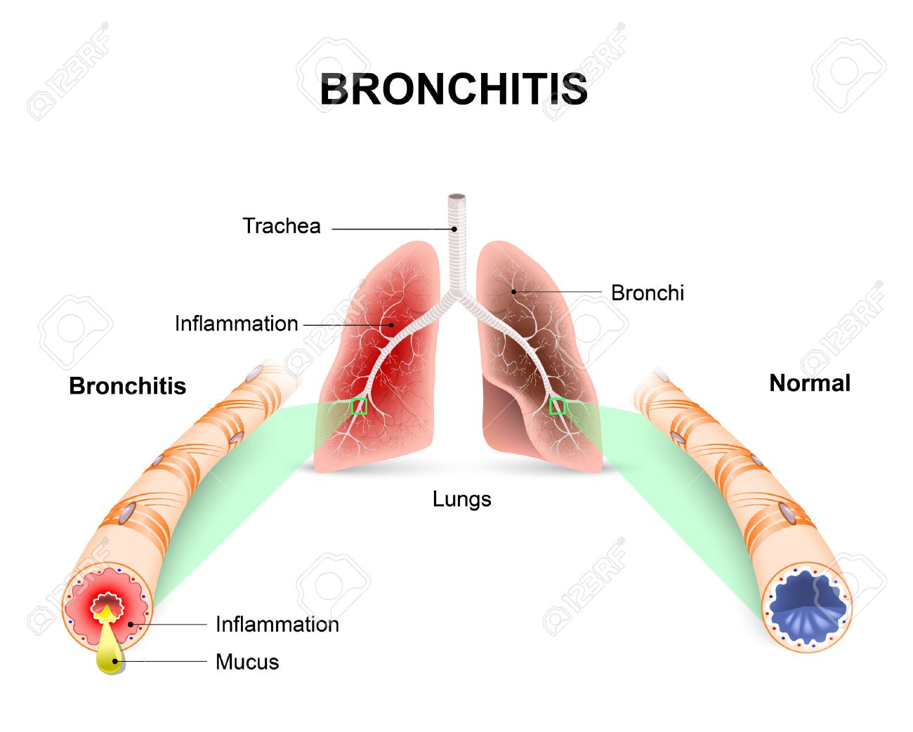 Bronchitis lungs and bronchial tubes normal bronchial tube lungs and bronchial tubes normal bronchial tube and a bronchial tube with bronchitis ccuart Gallery