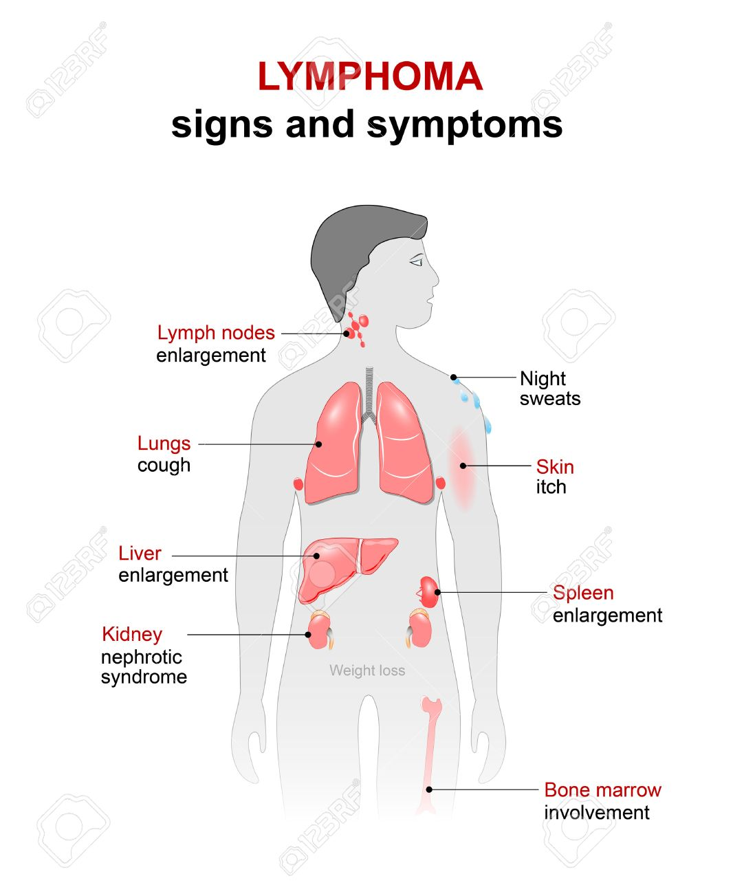 Lymphoma cancer disease signs and symptoms man silhouette signs and symptoms man silhouette with highlighted internal organs ccuart Choice Image