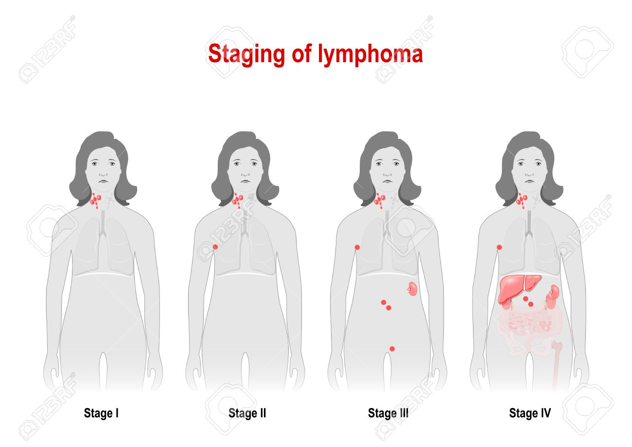 staging of lymphoma cancer of the lymphatic system signs and