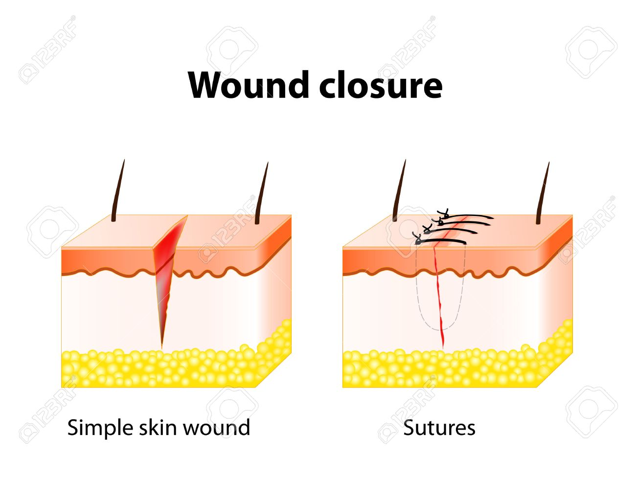 Wound Healing Process With Help Surgical Suture. Series Of ...