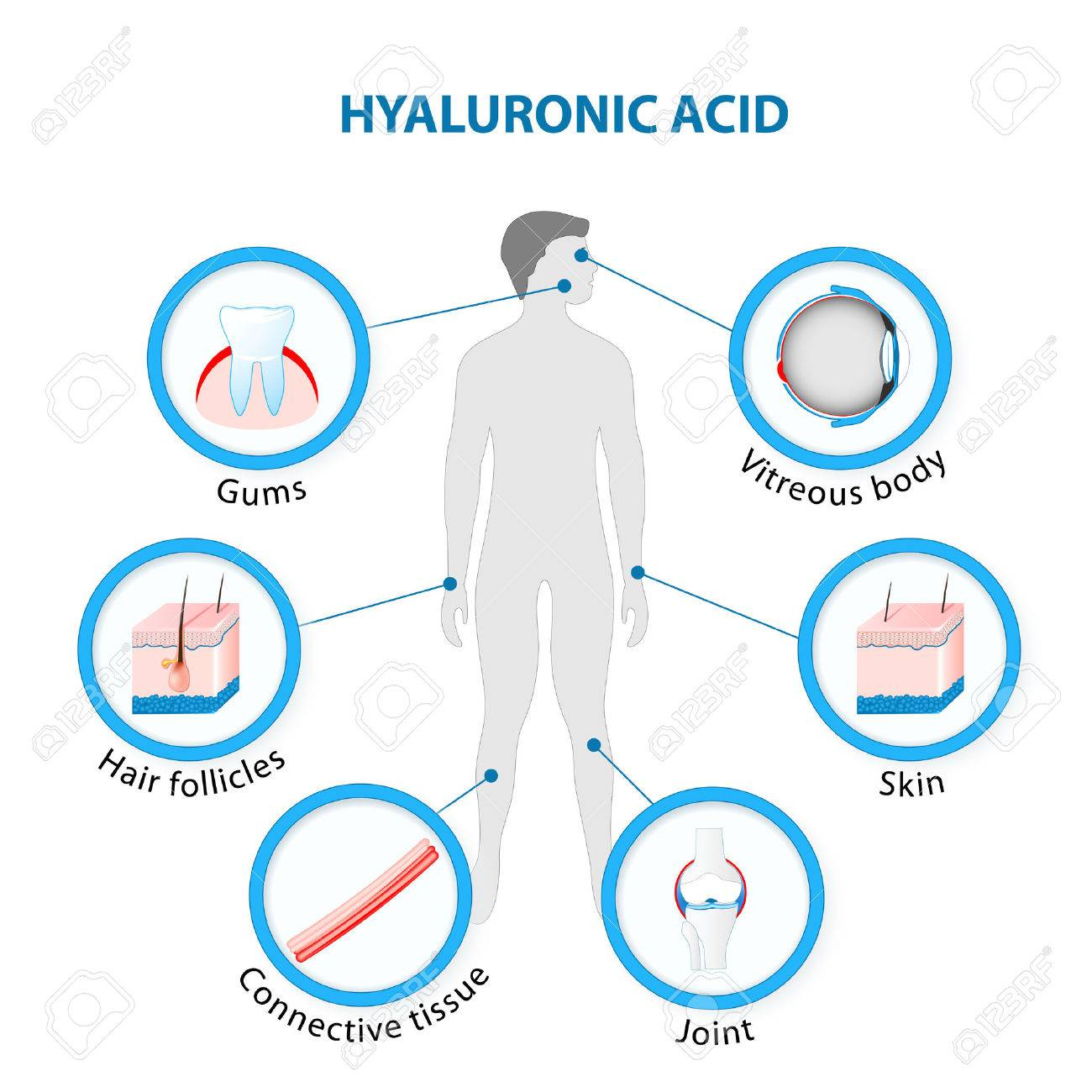 Hyaluronic Acid in the human Body. - 69252664