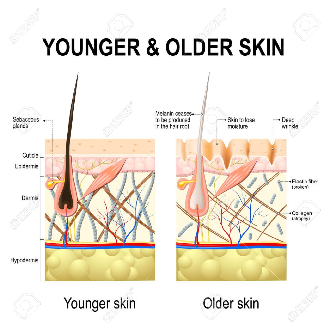 602 skin changes stock vector illustration and royalty free skin human skin changes or ageing skin a diagram of younger and older skin showing the pooptronica Choice Image