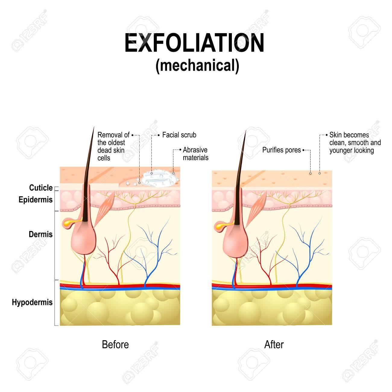 vente en magasin une autre chance mieux choisir Exfoliation ou Peeling est une procédure cosmétique (épuration physique)  pour éliminer les impuretés de la peau, désobstruer les pores et exfolier  les ...