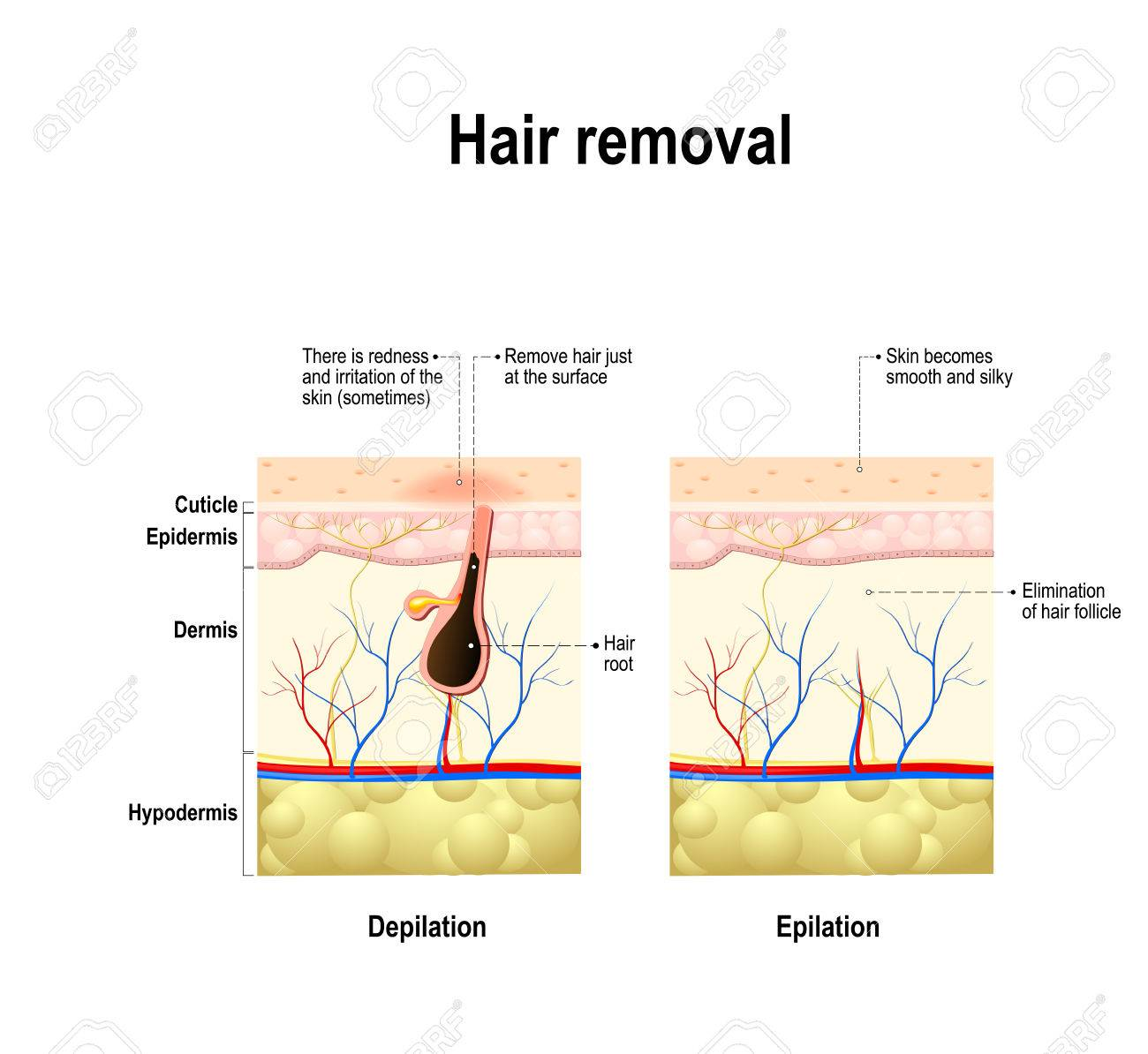 Epilation and depilation difference hair removal human skin epilation and depilation difference hair removal human skin stock vector 69366716 pooptronica Choice Image