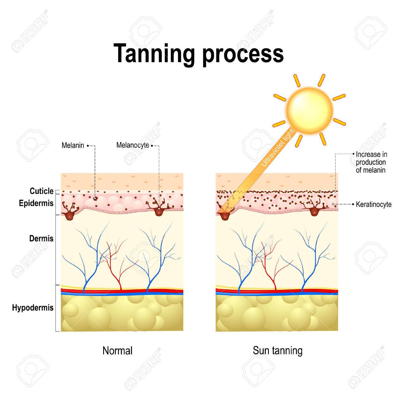 Tanning process. When ultraviolet light waves touch melanocytes, they begin to increase the production of melanin. The skin becomes dark color - 68919400