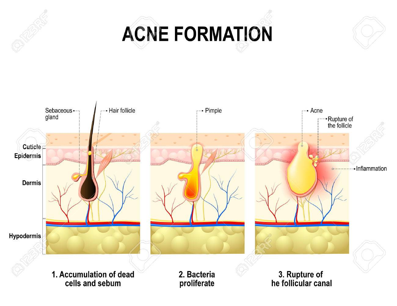 Three stages of the acne formation in the human skin. The sebum in the clogged pore promotes the growth of a bacteria Propionibacterium Acnes. This leads to the redness and inflammation, that associated with pimples. For clinics and Schools - 69366932