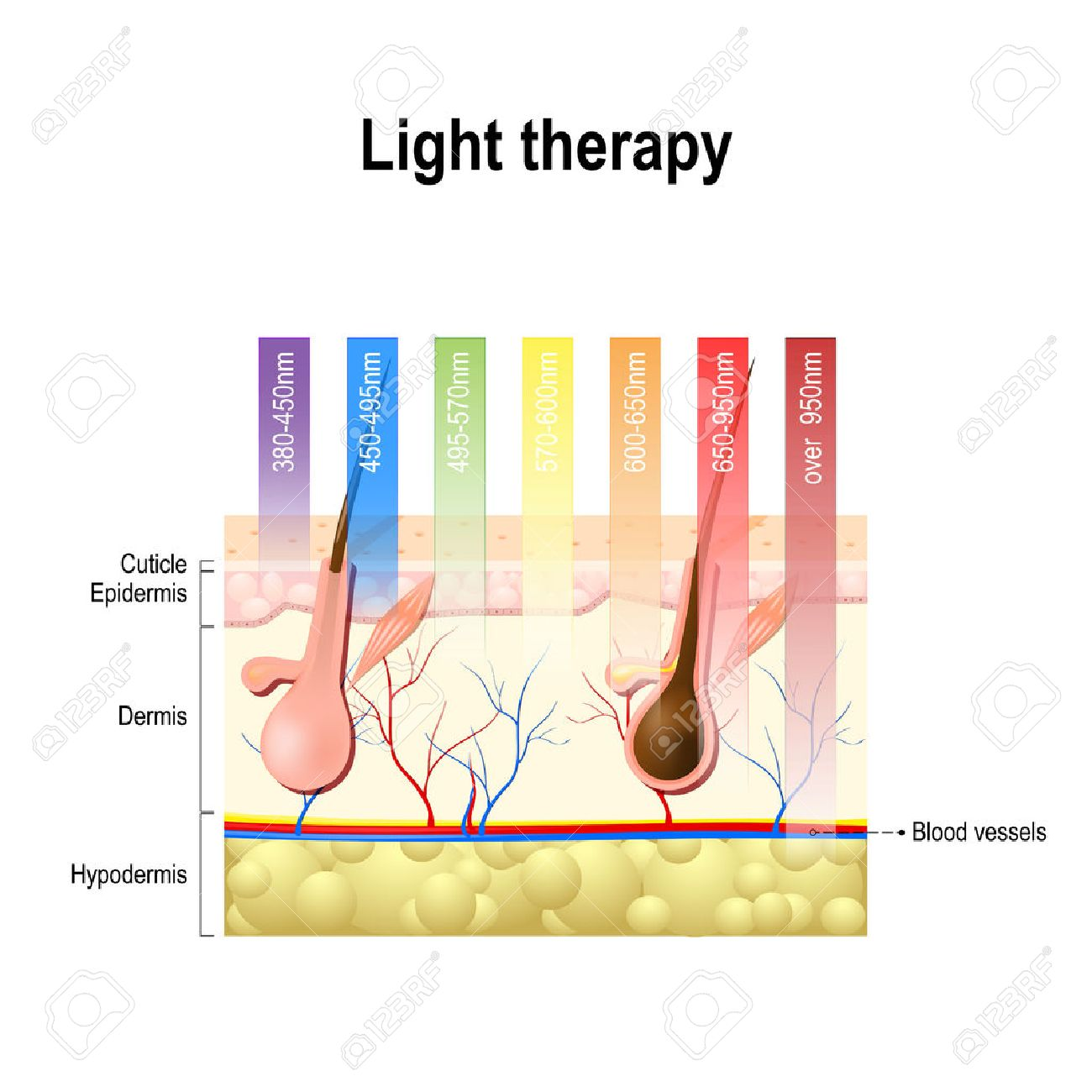 light therapy, Phototherapy or laser therapy. Electromagnetic spectrum with colors of the various wavelengths in the human skin. Different light spectrums would penetrate the skin to different depths. Depth of penetration by wave light - 69725355