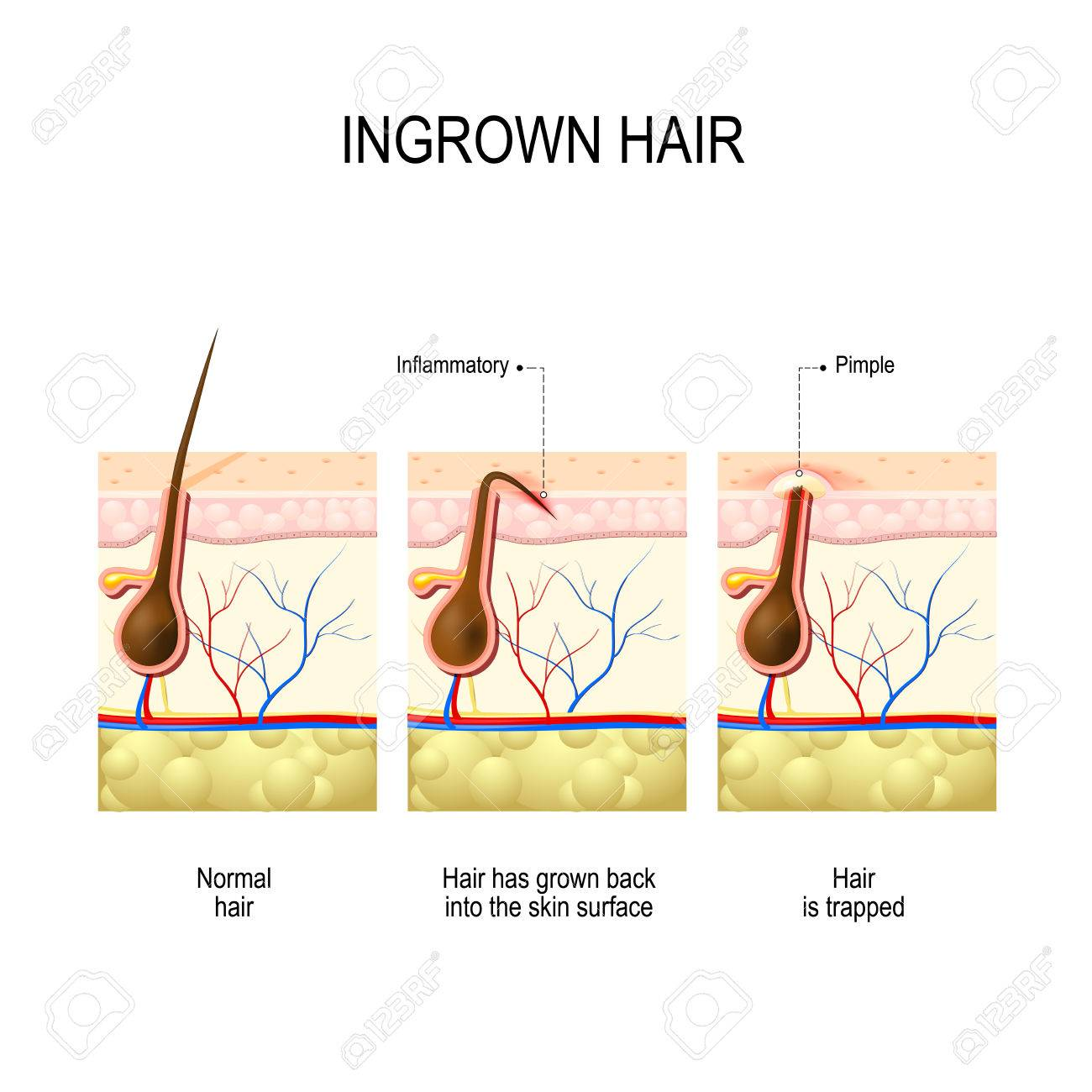 Ingrown hair after hair removal and shaving. buried hair. structure of the hair follicle - 69542256