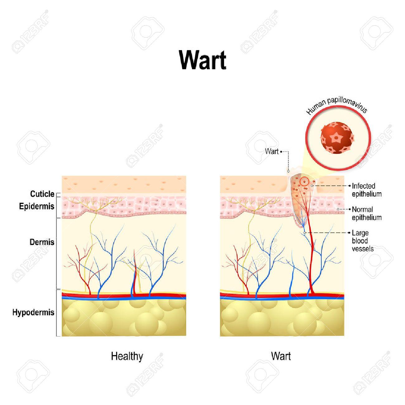 Verruga. Sección Transversal De La Piel Humana A La Infección Por El ...