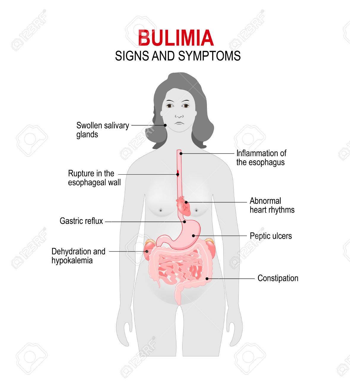 Bulimie Ist Eine Essstörung. Binge-eating Und Versucht, Um ...