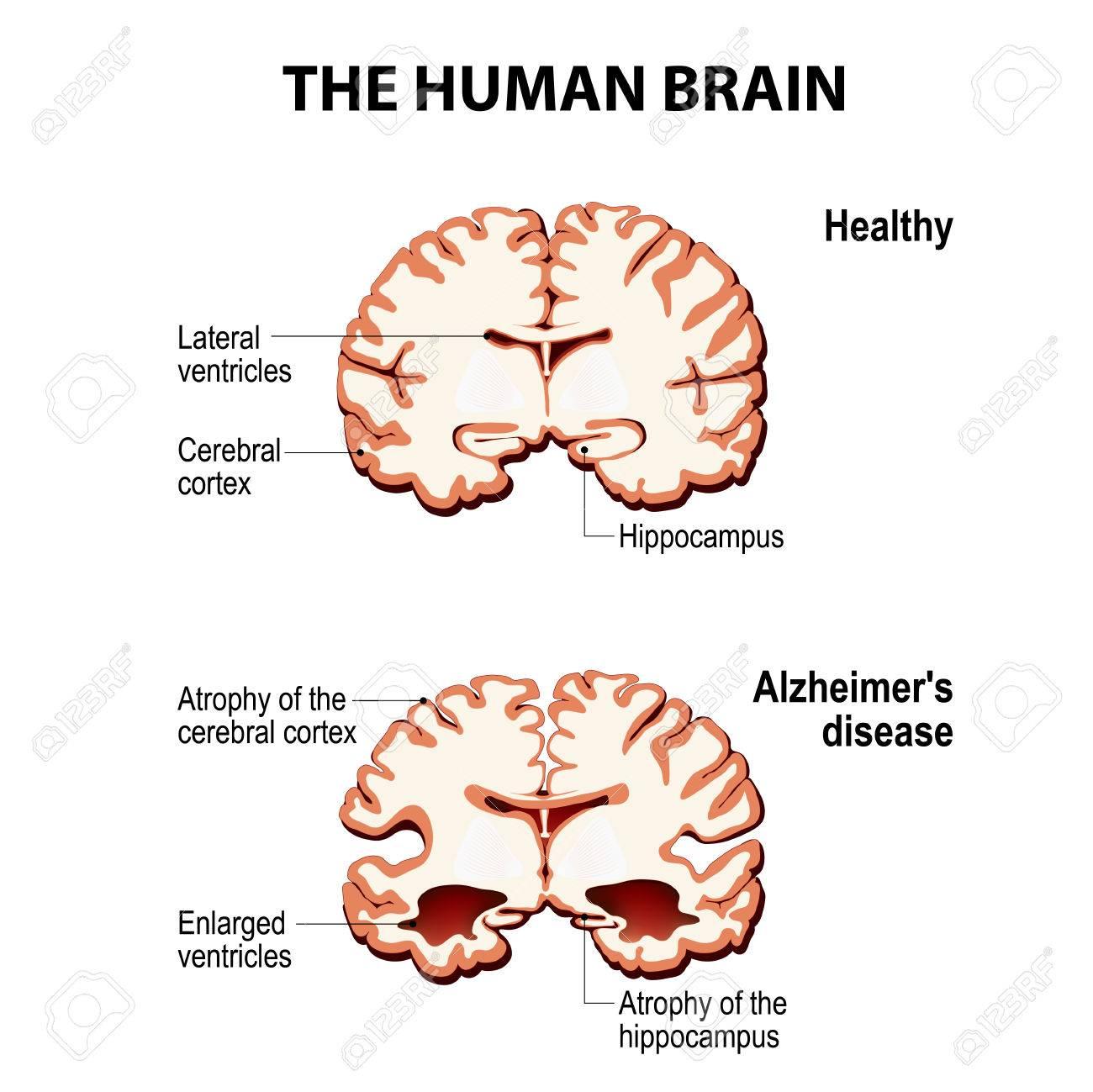 Das Menschliche Gehirn. Kreuzung. Gesund Und Gehirn Mit Alzheimer ...