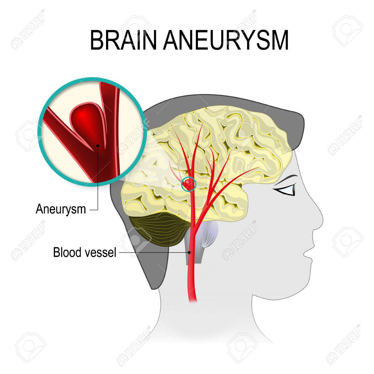 Blood Vessels In The Brain With Aneurysm On The Background Of ...