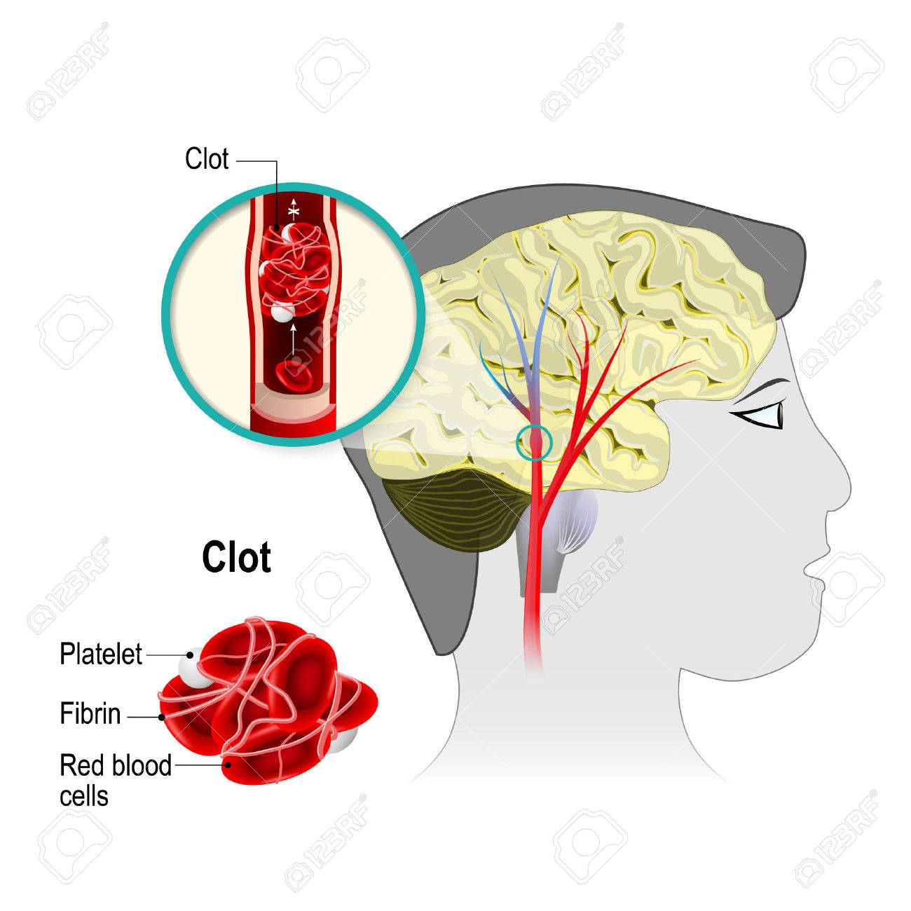 Cerebral infarction. brain stroke. the obstruction is caused by a blood clot that forms in a cerebral artery. Blood cells blocked of blood flow. Human anatomy. - 71630924