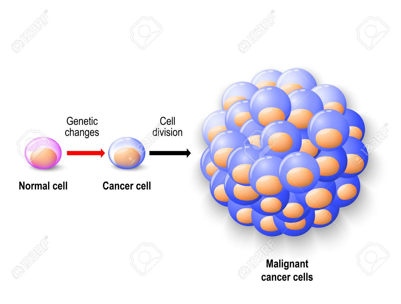 Normal Human Cell Reborn To Cancer Cells, And Growing To Malignant ...