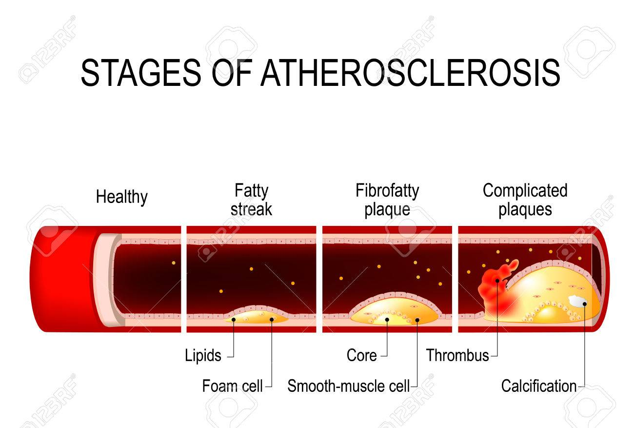 stages of atherosclerosis  detailed illustration  healthy artery and  unhealthy arteries  developing of plaque