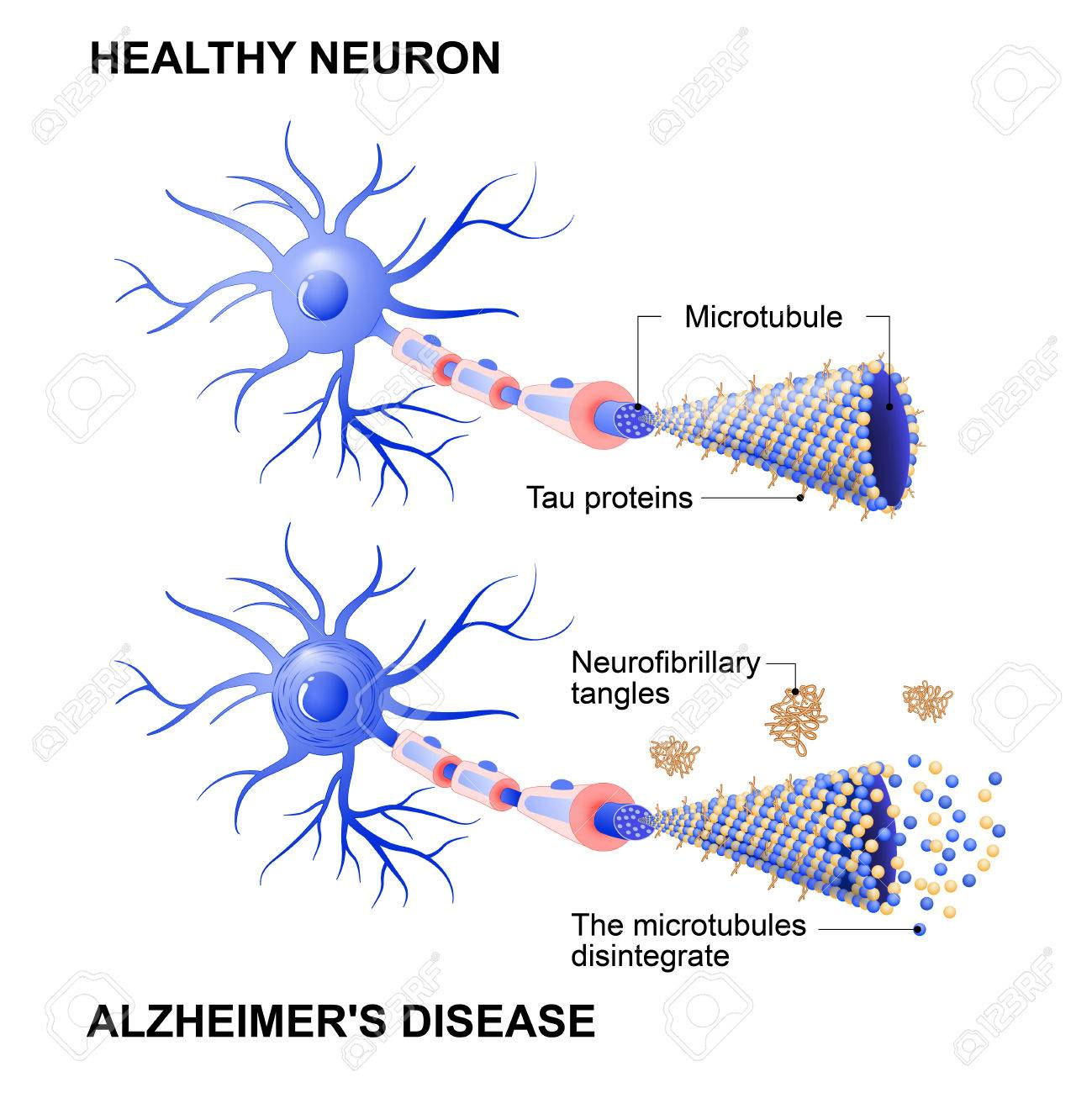 Alzheimer's disease is the change in tau protein that results in the breakdown of microtubules in brain cells. Mechanism of disease. Diagram shows two neurons: healthy cell and neuron with Alzheimer's disease. Tau hypothesis. Neurofibrillary tangles - 72304407