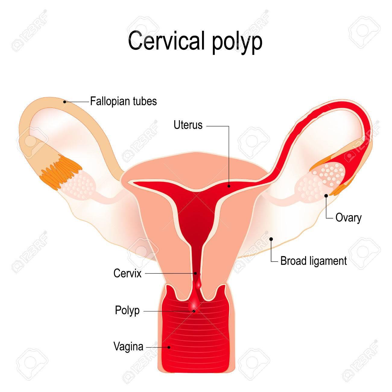 ポリープ 子宮 頸管