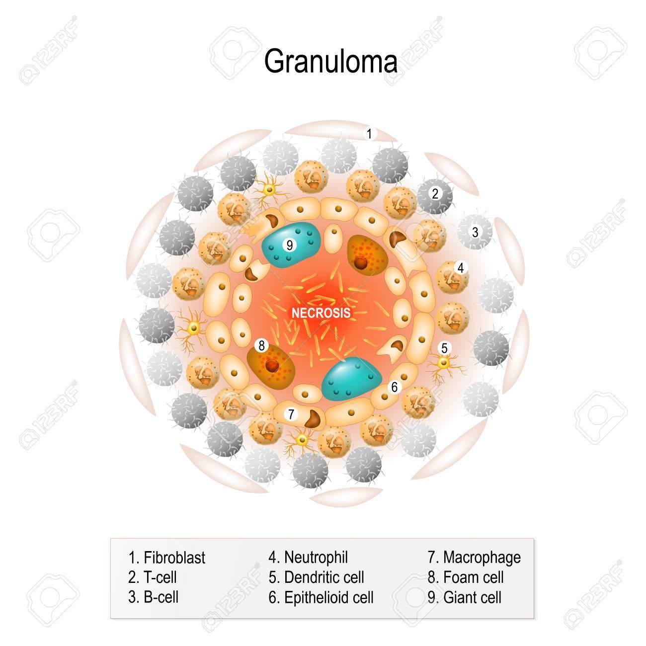 Zellstruktur Des Tuberkulösen Granulom. Menschliche Anatomie ...