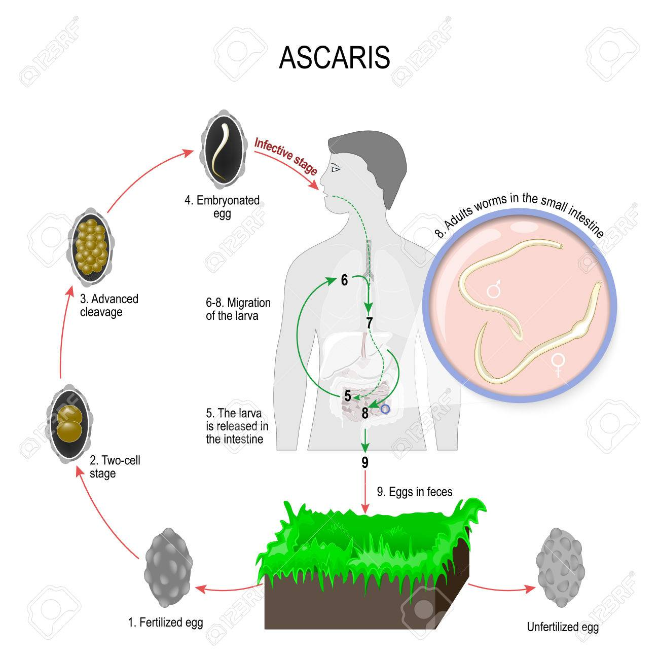 Ascaris Lumbricoides Life Cycle. Silhouette Of A Man With Internal ...