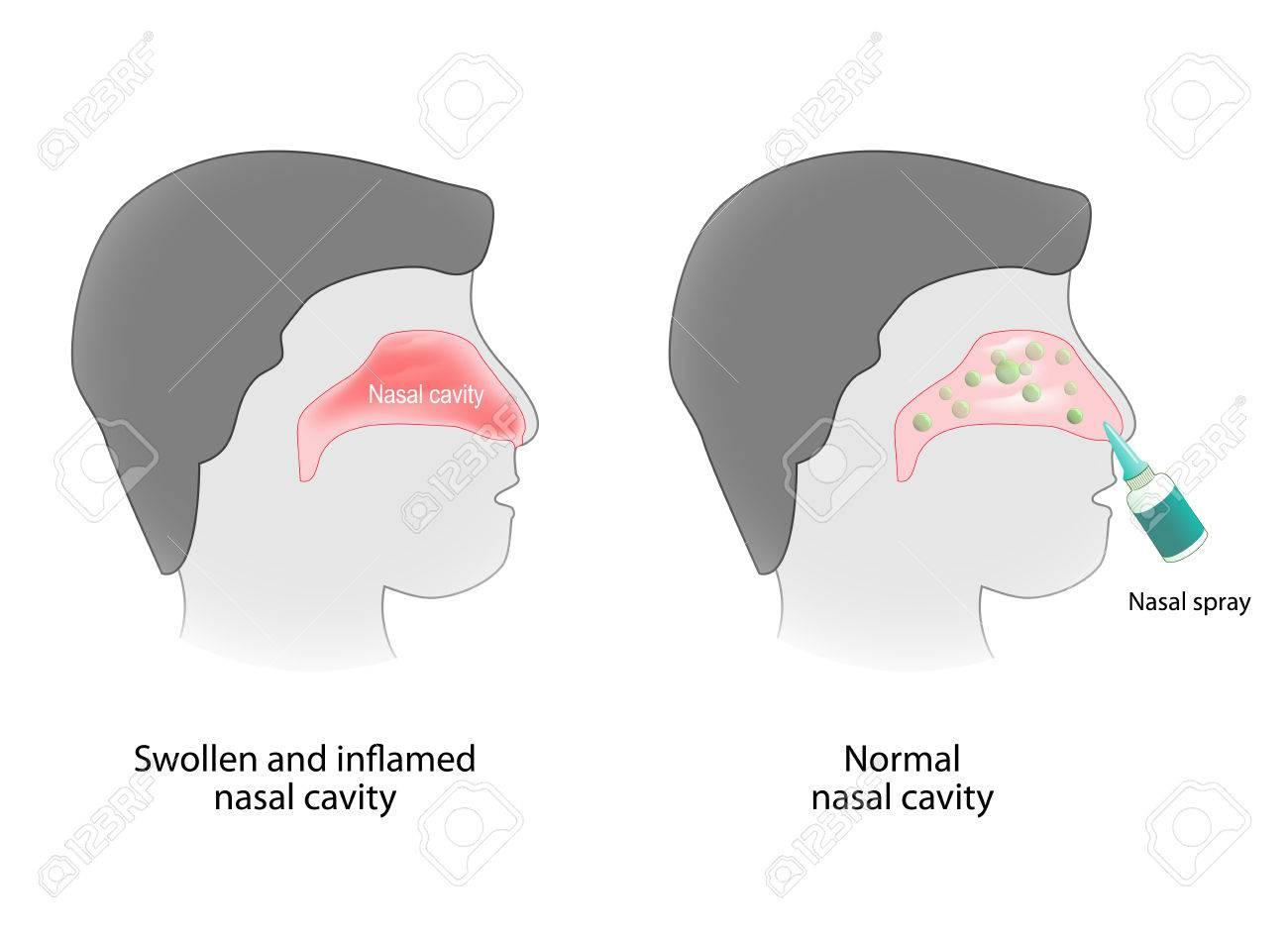 Inflamación De La Cavidad Nasal Y Cavidad Nasal Sanas. Aerosol Nasal ...