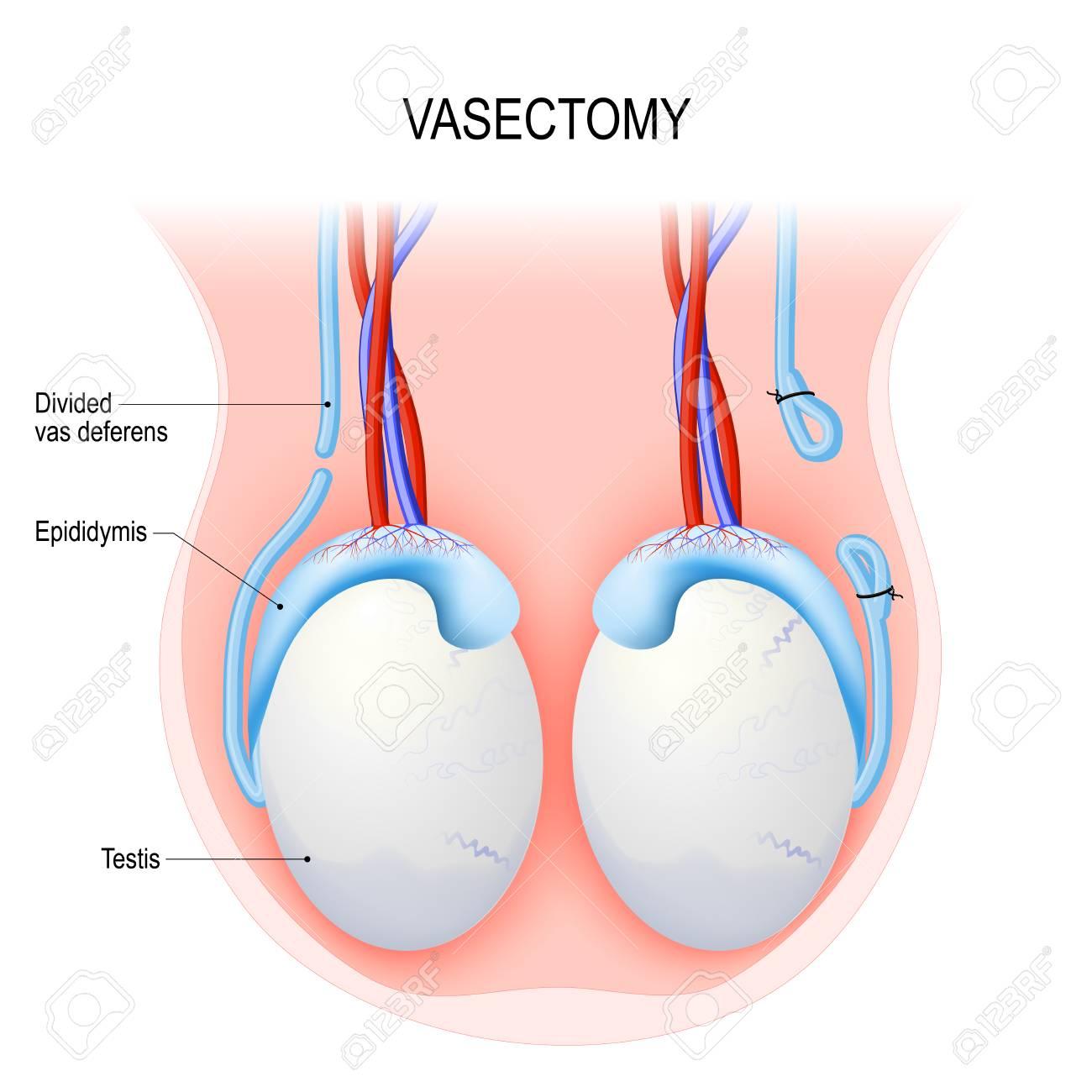 Vasectomía. Procedimiento Quirúrgico Para La Esterilización ...