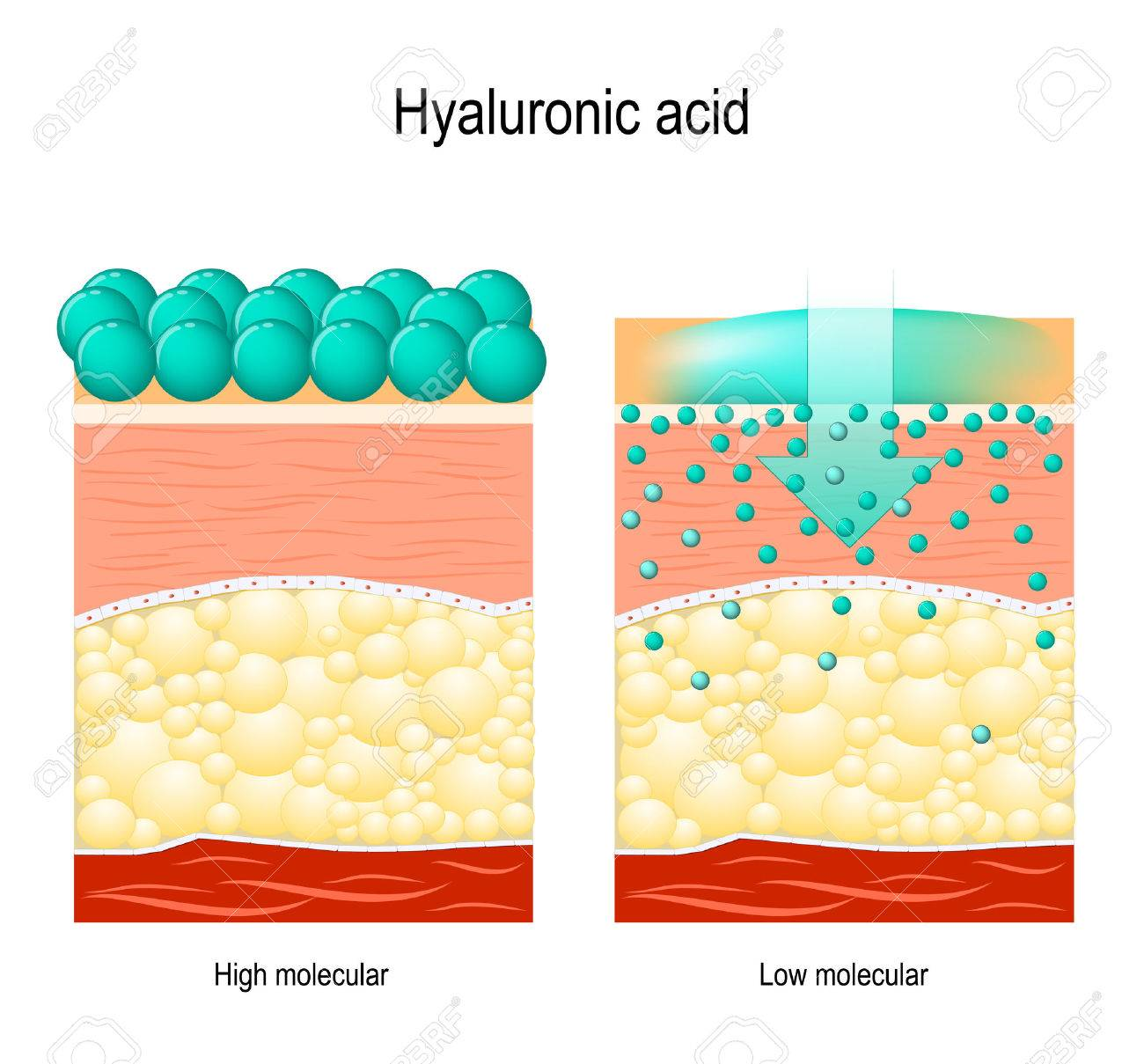 Hyaluronic acid. Hyaluronic acid in skin-care products. Low molecular and High molecular. Difference - 78261210