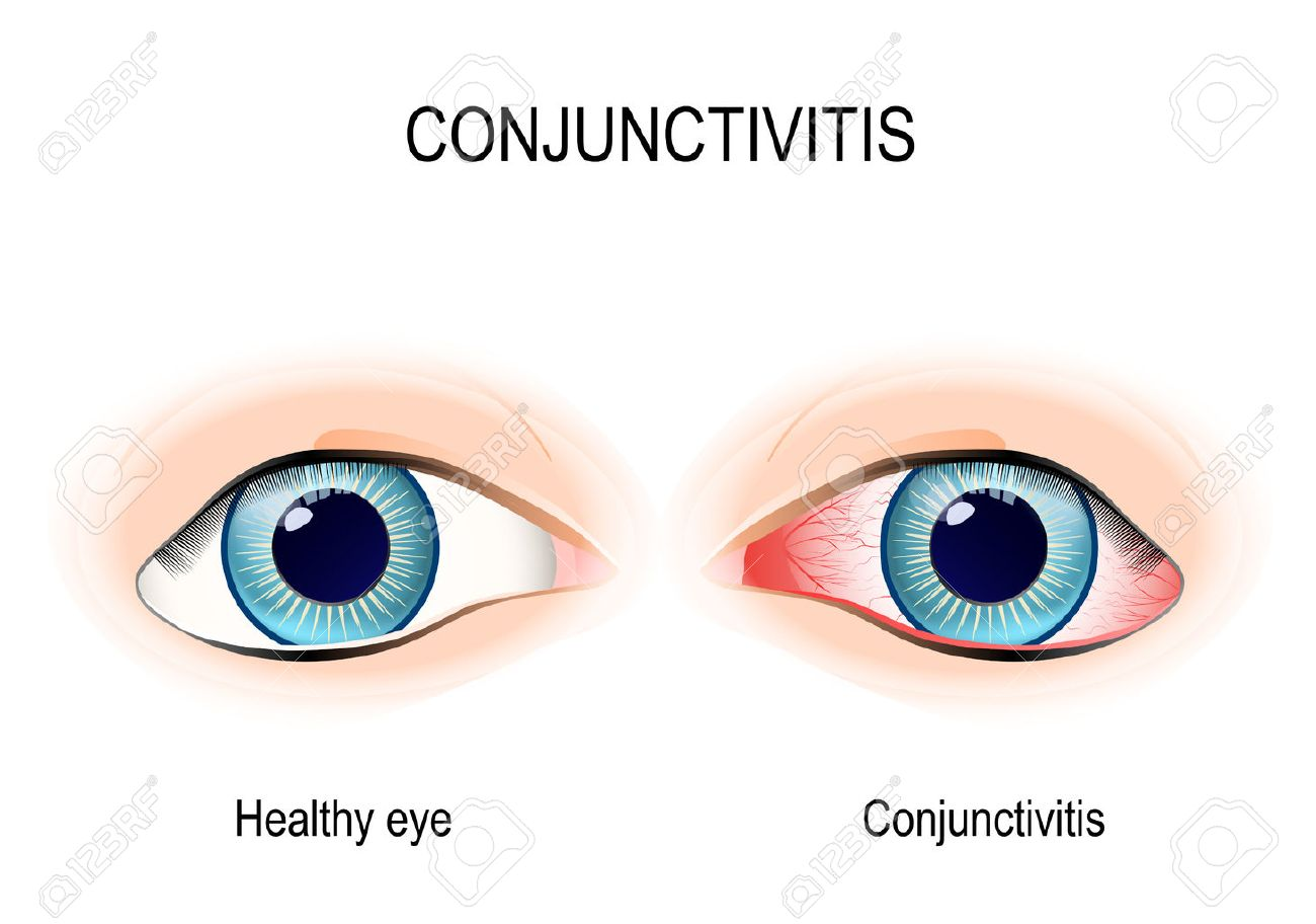 conjunctivitis healthy eye and pink eye with inflammation rh 123rf com pink eye cartoon pictures pink eye cartoon images