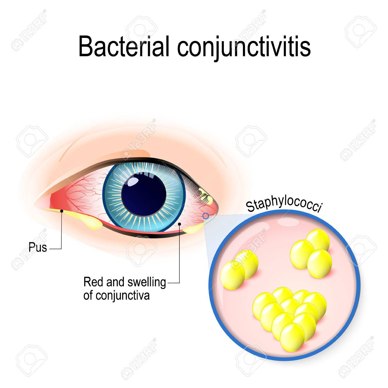 Bacterial conjunctivitis. Eye with conjunctivitis and bacteria that cause it. Staphylococci - 78193323