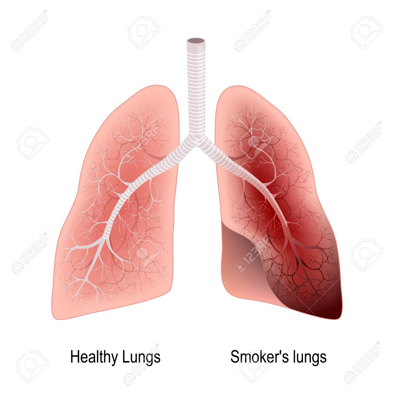 lungs after smoking kordur moorddiner co