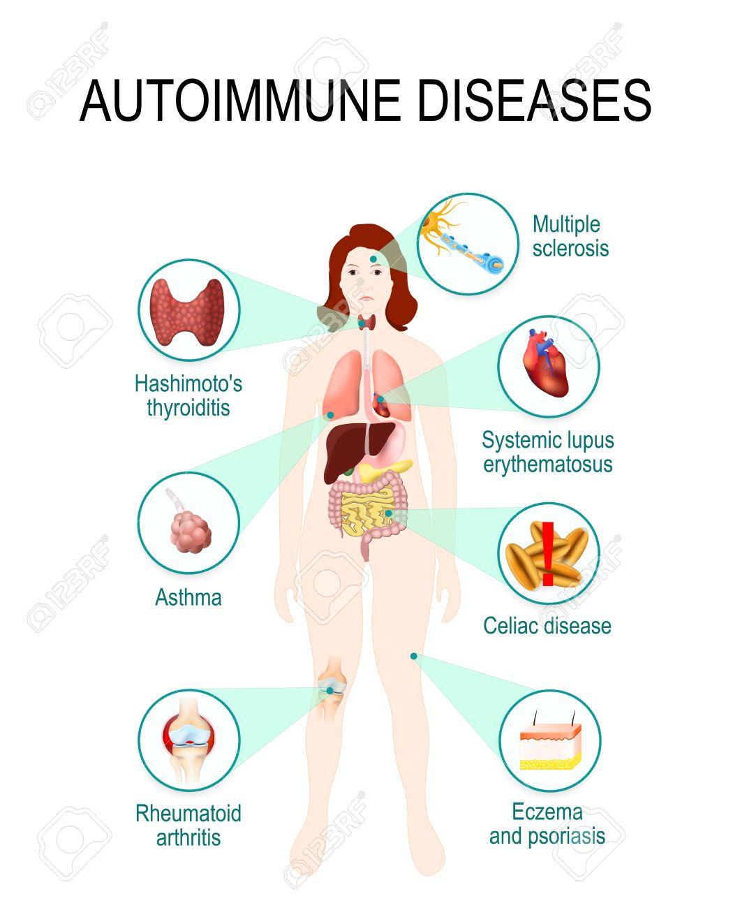 Enfermedades Autoinmunes. Tejidos Del Cuerpo Humano Afectados Por Un ...