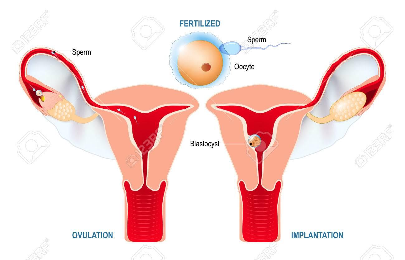El implantacion utero en