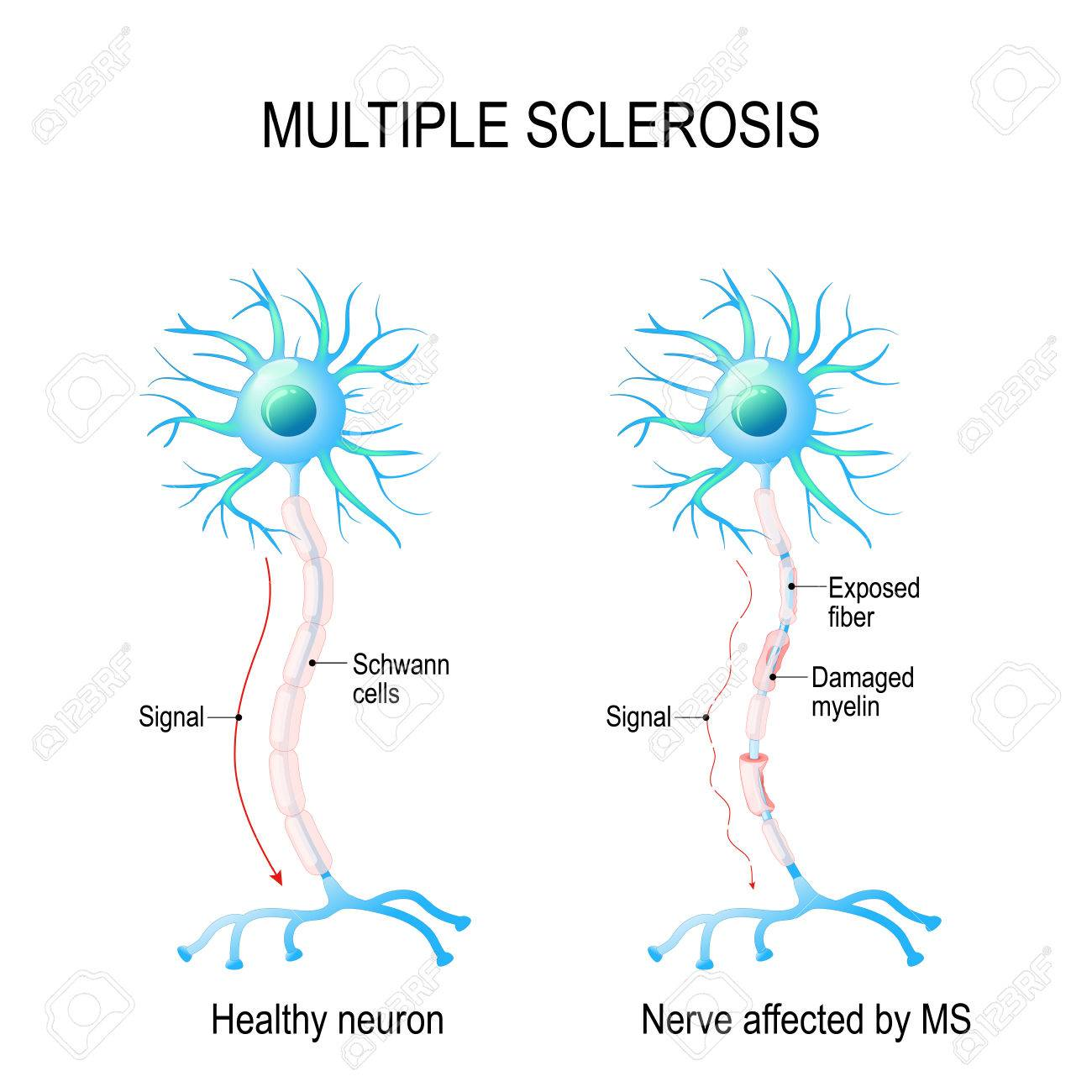 Multiple Sclerosis Or MS. Autoimmune Disease. The Nerves Of The ...